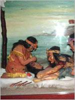 Операции по трепанации черепа у древних инков