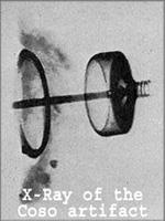 «Свеча зажигания» под рентгеном
